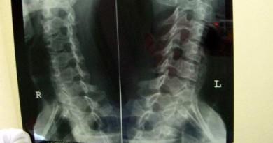 x-ray-1510651-640x480